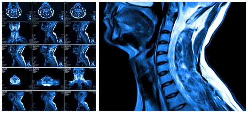 NJ spinal cord injury lawyers