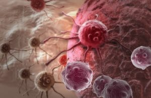 Cancer Detection and the Consequences of Misdiagnosis