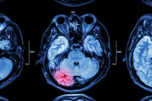 Failure to Diagnose Traumatic Brain Injury and the Consequences